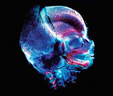 Image source: Craniofacial Embryogenetics and Development- Geoffrey H. Sperber, Steven M. Sperber